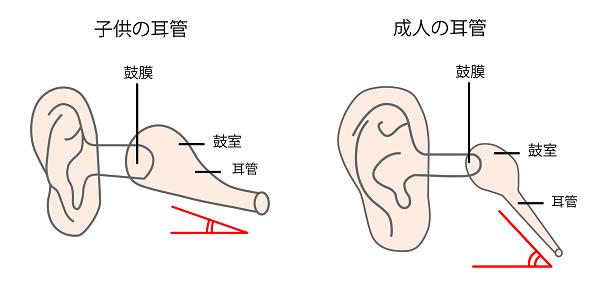 中 痛い が の 耳